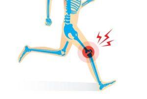 スポーツ障害 ランナー膝